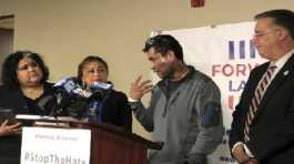 Mahud Villalaz, 42, of Milwaukee gestures to the second-degree burns on his face at a news conference